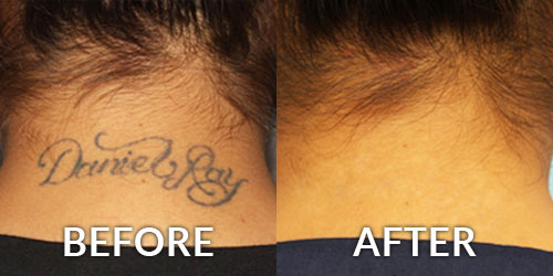 Tattoo Removal Dermatology
