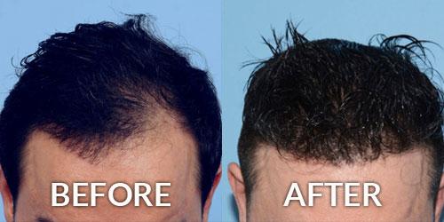 Hair Transplant Restoration