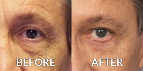 Blepharoplasty Eye Surgery