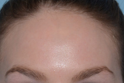 Acne Treatment Before & After Patient #4265