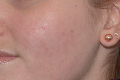 Acne Treatment Before & After Patient #4268