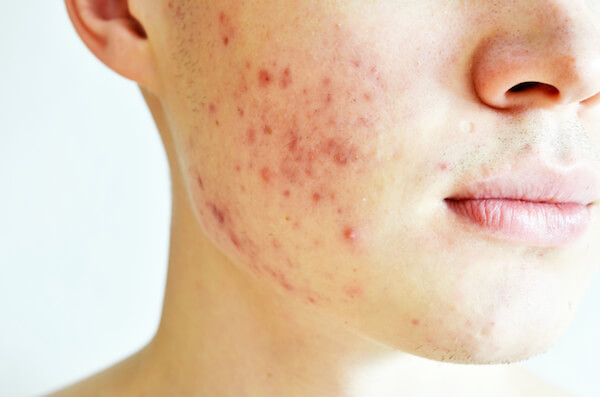 Complexion Issues Acne Issues Acne Treatments Acne Products