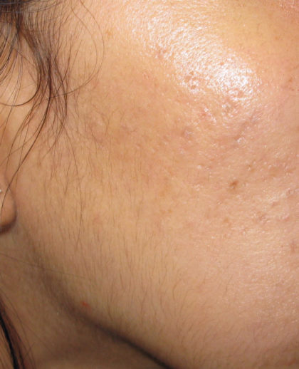 Active & Max FX Laser Before & After Patient #4568