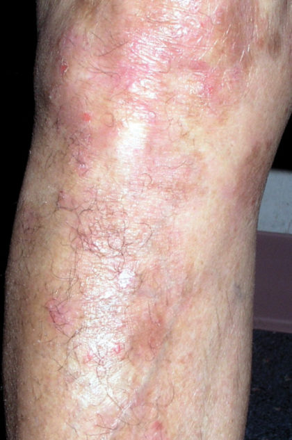 XTRAC Psoriasis Before & After Patient #4605