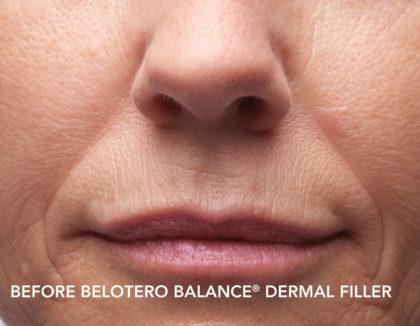 Belotero Before & After Patient #4283