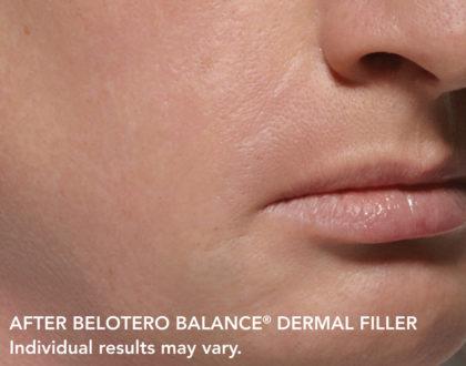 Belotero Before & After Patient #4286