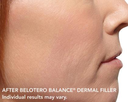 Belotero Before & After Patient #4289