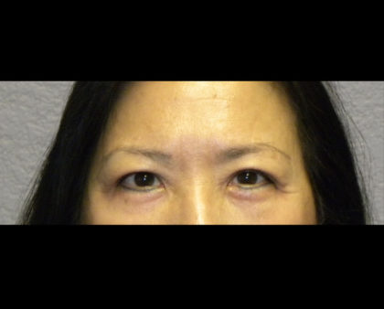 Brow Lift Before & After Patient #4322