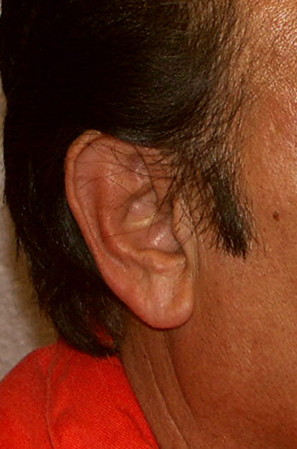Earlobe Repair Before & After Patient #4328
