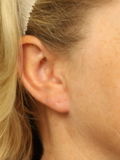 Earlobe Repair Before & After Patient #4333