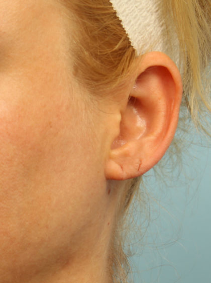 Earlobe Repair Before & After Patient #4337