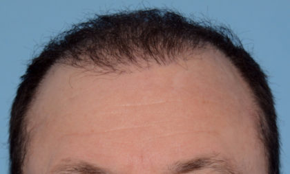 Hair Transplant Before & After Patient #4358