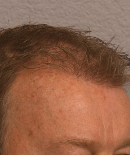 Hair Transplant Before & After Patient #4363