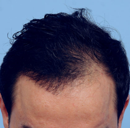 Hair Transplant Before & After Patient #4366