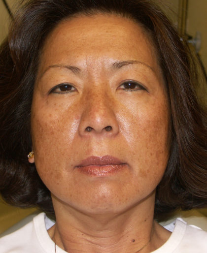 IPL Photorejuvenation Before & After Patient #4375