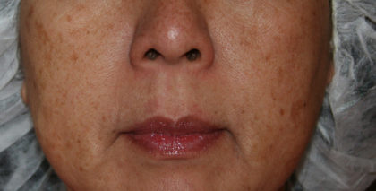IPL Photorejuvenation Before & After Patient #4378