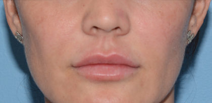 Juvederm Ultra Before & After Patient #4381