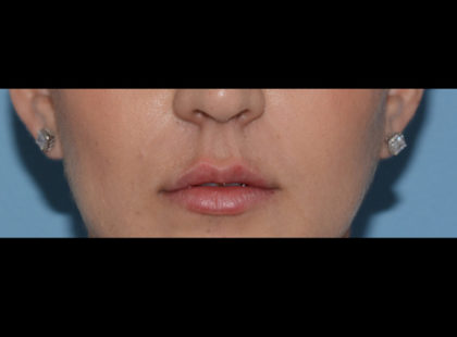 Juvederm Volbella Before & After Patient #4384
