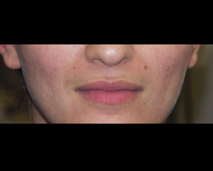 Cupid's Bow Before & After Patient #4428