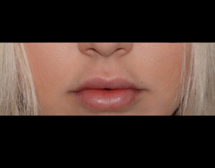 Juvederm Volbella Before & After Patient #4390