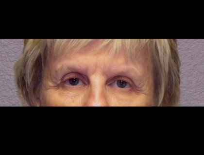 Lower Blepharoplasty Before & After Patient #4295