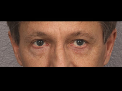 Lower Blepharoplasty Before & After Patient #4298
