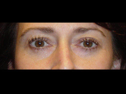 Blepharoplasty Before & After Patient #4301