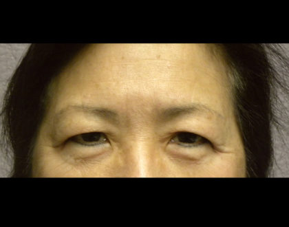 Lower Blepharoplasty Before & After Patient #4304