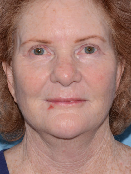 Mini Facelift Before & After Patient #4455