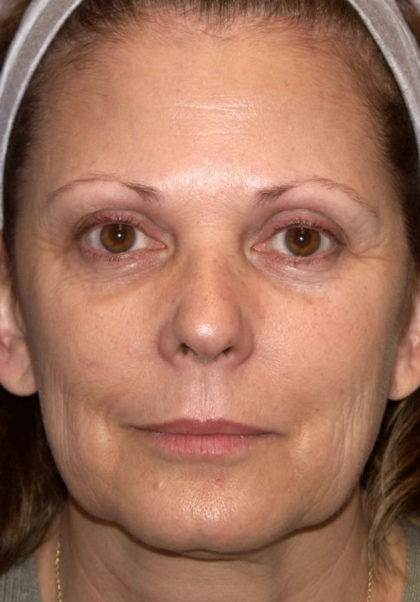 Mini Facelift Before & After Patient #4460