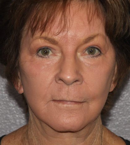 Mini Facelift Before & After Patient #4477