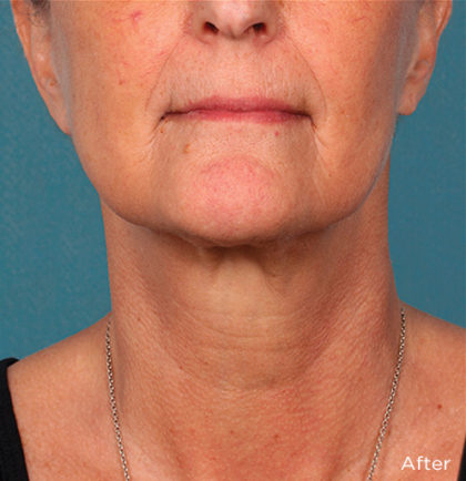 Kybella Before & After Patient #4413
