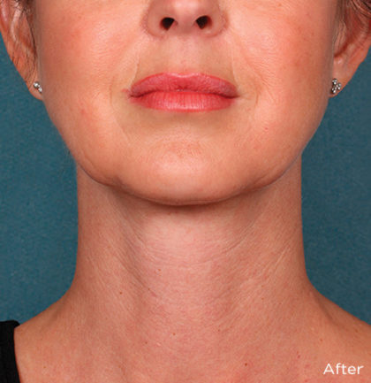 Kybella Before & After Patient #4418