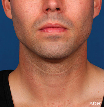 Kybella Before & After Patient #4423