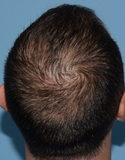 Hair Restoration w/ PRP Before & After Patient #4343