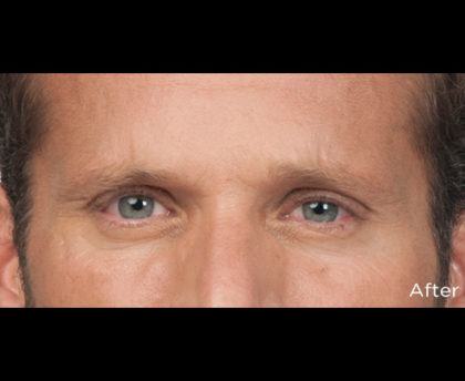Botox Before & After Patient #4316