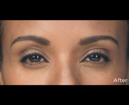 Botox Before & After Patient #4319