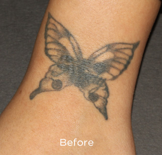 PicoSure Tattoo Removal Before & After Patient #4523