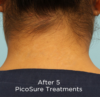 PicoSure Tattoo Removal Before & After Patient #4527