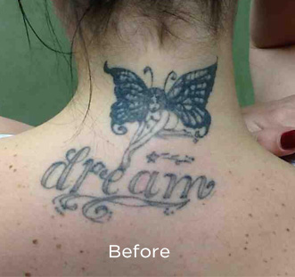 PicoSure Tattoo Removal Before & After Patient #4535