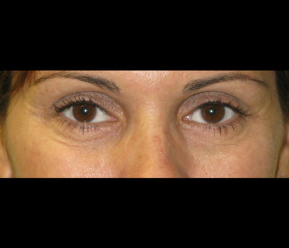 Restylane Before & After Patient #4554