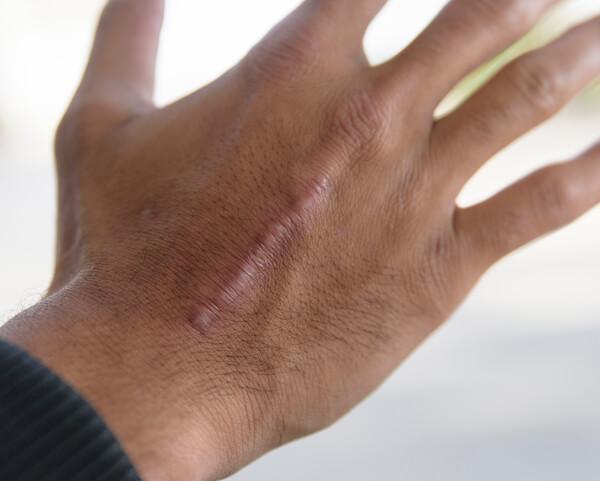 Effective Laser Scar Revision Surgery Phoenix Skin Medical
