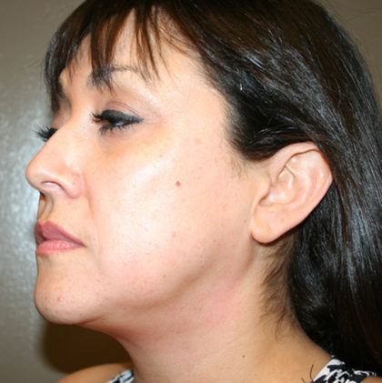 Ultherapy Before & After Patient #4582