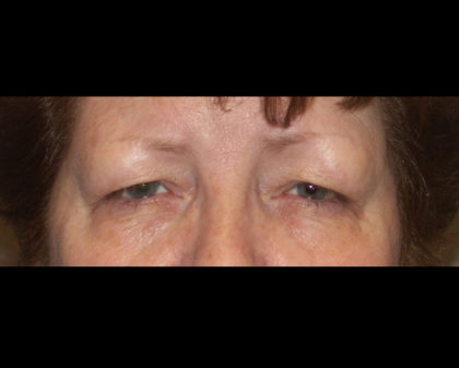 Blepharoplasty Before & After Patient #4307