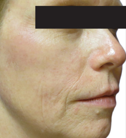 Venus Viva Before & After Patient #4597