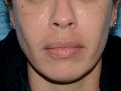 Red & Blue Light Therapy Before & After Patient #4277