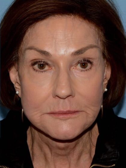 Mini Facelift Before & After Patient #5458