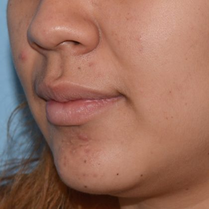 Acne Treatment Before & After Patient #5495