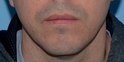 Active & Max FX Laser Before & After Patient #5509