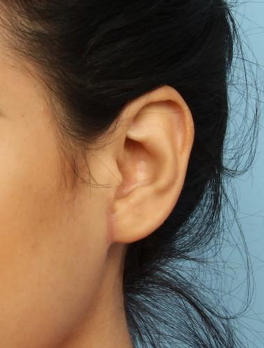 Earlobe Repair Before & After Patient #5506